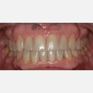 Orthodontics for adults. Lingual Orthodontics. Anterior crossbite and overcrowding 12