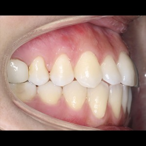 Lingual Orthodontics. Treatment of complex malocclusion class III and open bite in adult patient 12