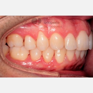 Severe overcrowding. Lingual Orthodontics without extractions. Stripping 10