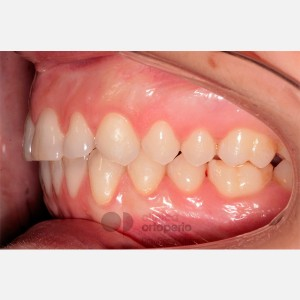 Lingual Orthodontics. Overbite excess, gingival smile, mild upper overcrowding 10