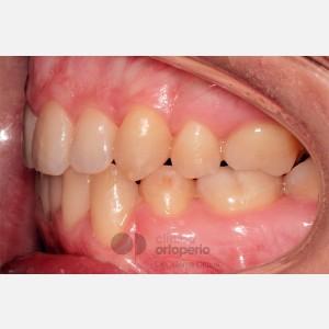 Ortodoncia Lingual. Clase III, Mordida Abierta, Apiñamiento severo, Extracciones 10
