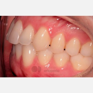 Lingual Orthodontics. Orthodontic re-treatment 10