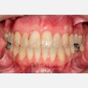 Ortodoncia Lingual. Mordida abierta, apiñamiento severo. Injerto encía 12