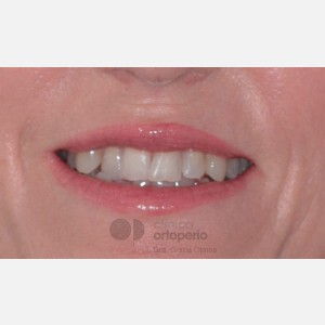 Orthodontics for adults. Lingual Orthodontics. Anterior crossbite and overcrowding 13