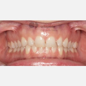 Lingual Orthodontics. Overbite excess, gingival smile, mild upper overcrowding 11
