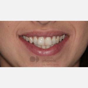 Ortodoncia Lingual. Apiñamiento 13