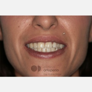 Ortodoncia Lingual. Caninos Incluidos. Caso Multidisciplinar: Ortodoncia e Implantes 13