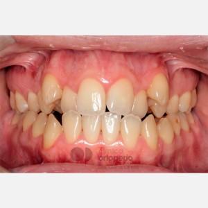 Ortodoncia Lingual. Clase III, Mordida Abierta, Apiñamiento severo, Extracciones 11
