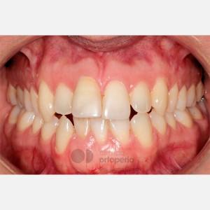 Ortodoncia lingual. Re-tratamiento de ortodoncia 11
