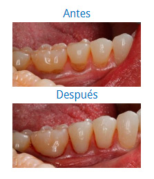 Caso sobre Estética Dental 1