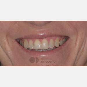 Orthodontics for adults. Lingual Orthodontics. Anterior crossbite and overcrowding 14