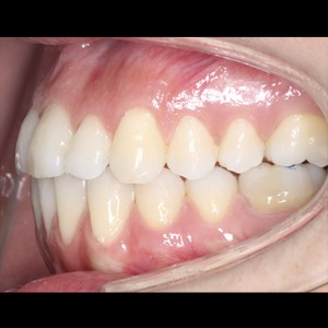 Lingual Orthodontics. Treatment of complex malocclusion class III and open bite in adult patient 14