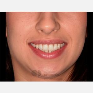 Ortodoncia Lingual. Apiñamiento 14