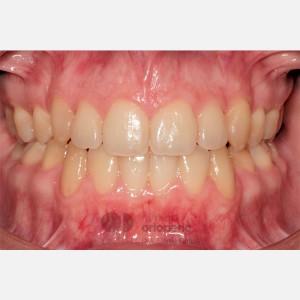 Ortodoncia Lingual. Clase III, Mordida Abierta, Apiñamiento severo, Extracciones 12