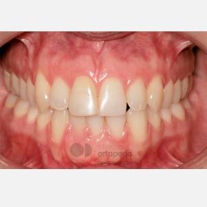Ortodoncia lingual. Re-tratamiento de ortodoncia 12