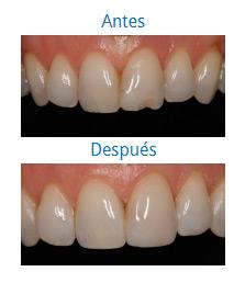 Caso sobre Estética Dental 2