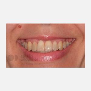 Ortodoncia Lingual. Mordida abierta, apiñamiento severo. Injerto encía 14