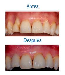Implants 3