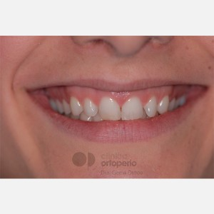 Lingual Orthodontics. Overbite excess, gingival smile, mild upper overcrowding 13