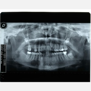 Lingual Orthodontics. Impacted canines. Multidisciplinary case: Orthodontic treatment and Implants 15
