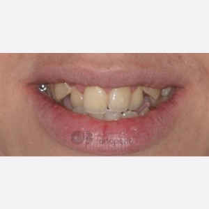 Lingual Orthodontics. Class III, open bite, severe overcrowding, extractions. 13