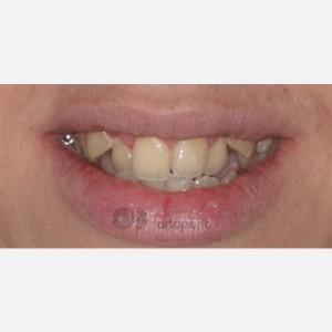 Ortodoncia Lingual. Clase III, Mordida Abierta, Apiñamiento severo, Extracciones 13