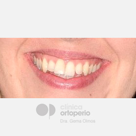 Lingual Orthodontics. Orthodontic re-treatment 13
