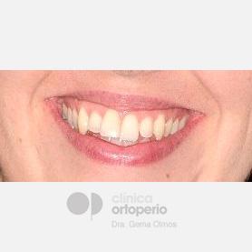 Ortodoncia lingual. Re-tratamiento de ortodoncia 13