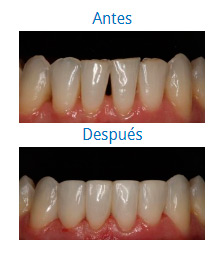 Dental Aesthetics 3