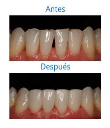 Caso sobre Estética Dental 3