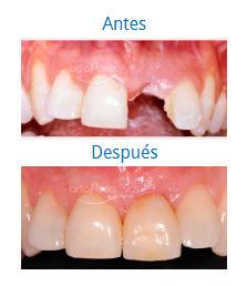 Implantes 4