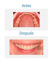 orthodontics 4
