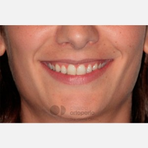 Lingual Orthodontics. Overbite excess, gingival smile, mild upper overcrowding 14