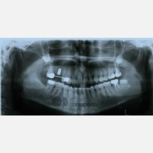 Ortodoncia Lingual. Caninos Incluidos. Caso Multidisciplinar: Ortodoncia e Implantes 16