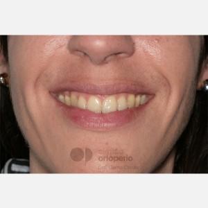 Ortodoncia Lingual. Clase III, Mordida Abierta, Apiñamiento severo, Extracciones 14