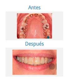Ortodoncia 5