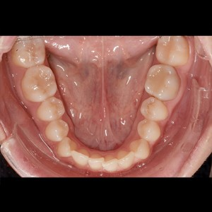 Lingual Orthodontics. Treatment of complex malocclusion class III and open bite in adult patient 17