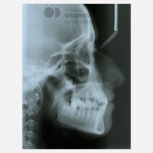 Ortodoncia Lingual. Caninos Incluidos. Caso Multidisciplinar: Ortodoncia e Implantes 17