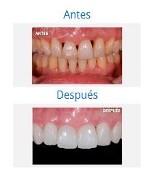 Caso sobre Estética Dental 5