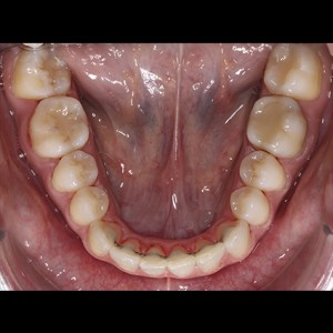 Lingual Orthodontics. Treatment of complex malocclusion class III and open bite in adult patient 18