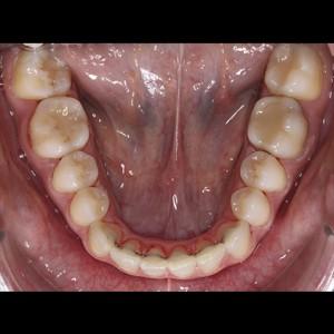 Ortodoncia Lingual. Tratamiento de una maloclusión compleja de clase III y mordida abierta en paciente adulto. 18
