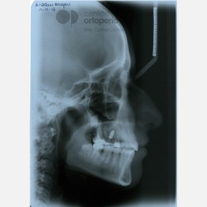 Lingual Orthodontics. Impacted canines. Multidisciplinary case: Orthodontic treatment and Implants 18