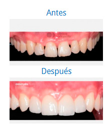 Dental Aesthetics 6
