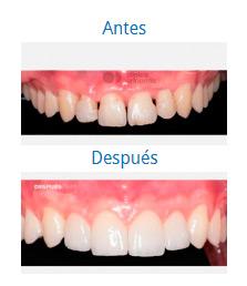 Caso sobre Estética Dental 6