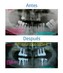 Implants 7