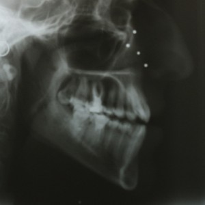 Lingual Orthodontics. Treatment of complex malocclusion class III and open bite in adult patient 19
