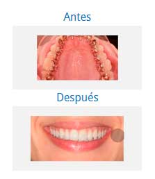 orthodontics 7