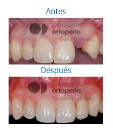Caso sobre Estética Dental 7