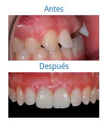 Caso sobre Estética Dental 8