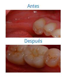 Implantes 9